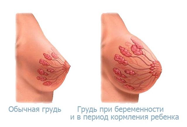 Что булькает в груди после маммопластики